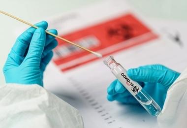 Laboratório do HSI realiza teste rápido antígeno de Covid com resultado em até quatro horas